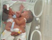 صور.. ولادة توأم ملتصق بمستشفى الشاطبى بالإسكندرية