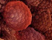 اكتشاف علمى يعمل على معالجة 7 أنواع من السرطانات وينقذ حياة المصابين