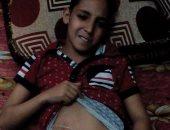 الطفل محمد دهسه جرار زراعى ويحتاج عملية تعديل مجرى البول على نفقة الدولة