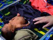 صور.. الأمراض تهدد أطفال الروهينجا فى بنجلاديش