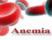 كيف تحمى نفسك من الإصابة بالأنيميا ونقص الحديد × 9 معلومات