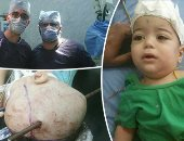 محافظ الغربية يطمئن على الطفل زياد محمد بعد استخراج سيخ حديدى من رأسه