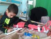 """30 يوم فى الخير.. """"البراء"""" ينتظر العلاج ويحارب تأكل العظام بابتسامته"""