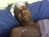 إصابة مواطن وحرق نجلته الطفلة بتحريض من إمام وخطيب بالشرقية