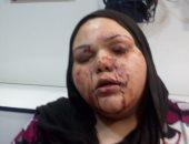 حبس المتهم بإصابة شقيقته بالخرطوش لخلافات على الميراث بالشرقية