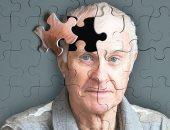 أسباب فقدان الذاكرة أهمها الزهايمر والخرف الوعائى