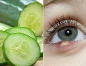 صحتك فى وصفة.. استخدم الألوفيرا والخيار لعلاج دمامل العين
