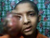 طفل مريض بسرطان الوجه يطالب بعلاجه بالخارج