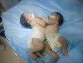 صور وفيديو.. ولادة توأم ملتصق بكفر الشيخ ومناشدة لإجراء عملية فصل بينهما
