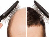 """زراعة الشعر.. اعرف تفاصيل إجراء العملية بالاقتطاف """"FUE"""" من دكتور محمد عماد"""