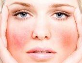 اعرف جسمك.. الشعيرات الدموية فلاتر تمرير الغازات والمغذيات لكل أنسجة الجسم