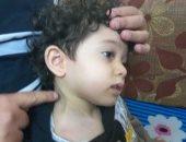 """صور.. مأساة الطفل """"شنودة"""" يحتاج جراحة لزراعة عصب ليتمكن من الحركة مرة أخرى"""
