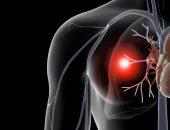 دراسة: الأمريكيون من أصل أفريقى المصابون بالسرطان أكثر عرضة لخطر جلطات الدم