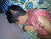 صور.. مأساة طفل بالقليوبية عقره كلب مسعور فى رأسه وذراعه