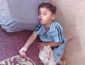 صور... مأساة طفل بالغربية يعانى من انفصال فى الشبكية ووالده يناشد الصحة علاجه