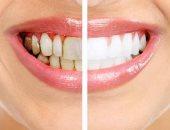 متستهونش بوجوده.. أضرار جير الأسنان على صحتك