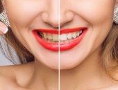 نظافة الأسنان تمنع الإصابة بارتفاع ضغط الدم.. اعرف التفاصيل