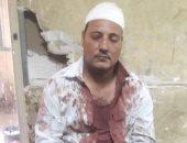 بلطجيان يعتديان على أمين شرطة بالمحلة ويصيبانه بـ41 غرزة فى الرأس