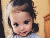 ميلانى عيناها كبيرة تشبه أميرة ديزنى.. لكنها تعانى من مرض وراثى نادر