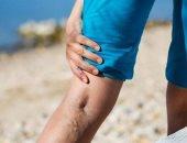خلى بالك.. أنت معرض لجلطة لو أهملت علاج دوالى الساقين