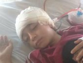 ضحايا التنمر عرض مستمر.. تلميذ فى أبو النمرس يصيب زميله بنزيف بالمخ