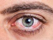 استخدم الطب البديل لعلاج حساسية العين بكمادات المياه الباردة والبابونج