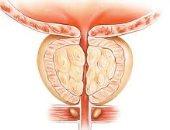 اعراض التهاب البروستاتا وطرق الوقاية منها