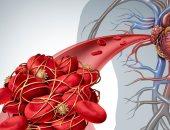 أبحاث جديدة توفر أملا جديدا للوقاية والعلاج من تجلط الأوردة العميقة