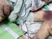 ربة منزل تحرر محضر ضد مستشفى الزقازيق الجامعى للإهمال فى علاج والدها المسن
