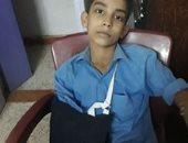 ولى أمر يشكو كسر ذراع ابنه على يد معلم بمدرسة بالمنيا