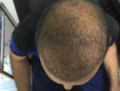 """تخلص من مشكلة """"الصلع"""" وازرع شعرك فى 5 خطوات يشرحها الدكتور مصطفى زيدان"""