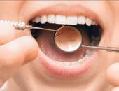 الجينات قد تلعب دورا فى تسوس الأسنان وأمراض اللثة