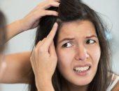 زيت اللوز وعصير الليمون لعلاج قشرة الشعر