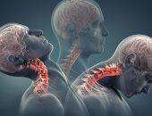 اعرف جسمك.. عضلات الرقبة تساعد على دورانها والحفاظ على توازنها