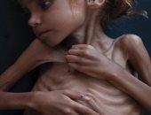 """مأساة الطفلة أمل فى اليمن.. تهز ضمير العالم بعدما قتلها """"الجوع"""".. فيديو"""