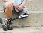 عملية كل ساعة.. دراسة تكشف ارتفاع عدد ضحايا عمليات البتر المرتبطة بالسكر