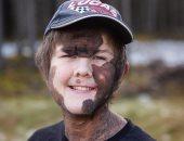 الوحمات العملاقة القاتلة..طفل 11عاما تغطى البقع البنية جسمه فى حالة نادرة