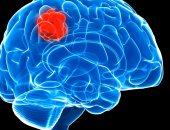 علاج سرطان المخ وأعراضه