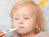 أمريكا تسجل أعلى عدد لحالات الحصبة منذ القضاء على الفيروس عام 2000