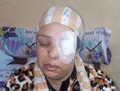 ممرضة تتهم مترددا بمستشفى تأمين أسوان بفقأ عينها