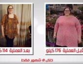قصة فتاة أمريكية نجحت فى القضاء على السمنة مع دكتور أحمد السبكى.. اعرف التفاصيل
