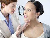علاج الكلف بطرق مختلفة منها الأدوية