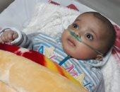 مواطن يحرر محضرا ضد مستشفى بالوراق بعد حرق طفله بسبب الإهمال الطبى