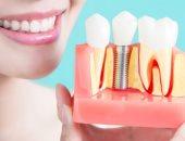 س وج.. كل ما تريد معرفته عن زراعة الأسنان