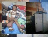 والد طفل بتر ذراعه صعقا بالكهرباء بكفر الشيخ يطالب بالتحقيق فى الواقعة