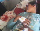 """صور.. """"منال"""" طفلة مصابة بنزيف حاد وتستغيث بوزيرة الصحة لإنقاذ حياتها"""