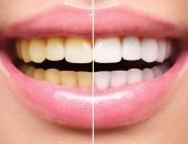 لديك بقع بيضاء أو صفراء على أسنانك.. احذر قد تكون اضطراب مناعة