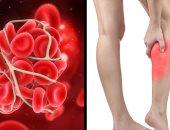 فيروس كورونا يصيب البطانة الخاصة بالأوعية الدموية..اعرف التفاصيل