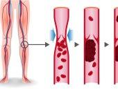 5 أشياء تجعلك عرضة لخطر الإصابة بالجلطات الدموية