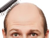 بنك لبصيلات الشعر.. بريطانيون يبتكرون تقنية لتخزين شعرك للوقاية من الصلع